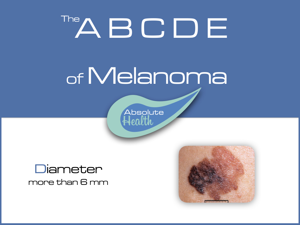 recognize a melanoma