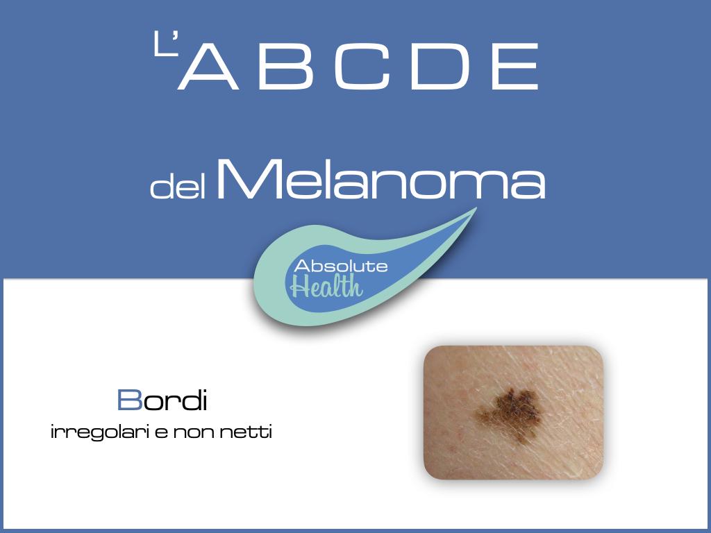 riconoscere un melanoma