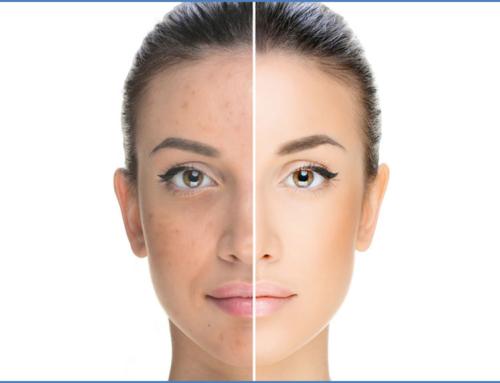 Skin Biorevitalization